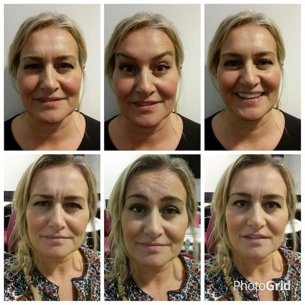 anti-wrinkle-treatment-bromley-02