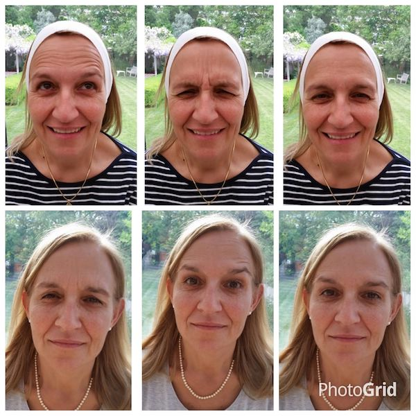 anti-wrinkle-treatment-bromley-01