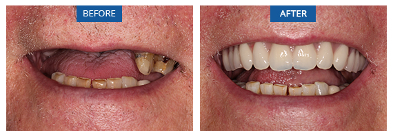 Same Day Teeth Bromley Case 1