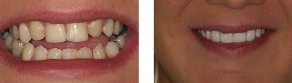 dental-veneers-bromley-case-1-small
