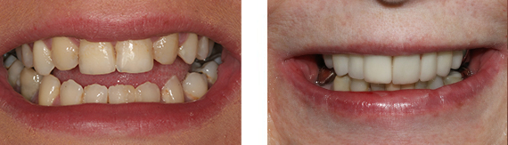dental-veneers-bromley-case-2-small