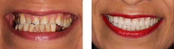 dental-veneers-bromley-case-6-small