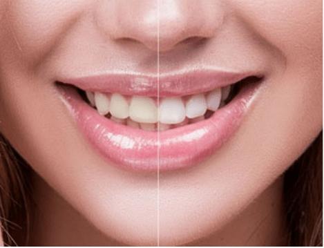 dentist teeth photo