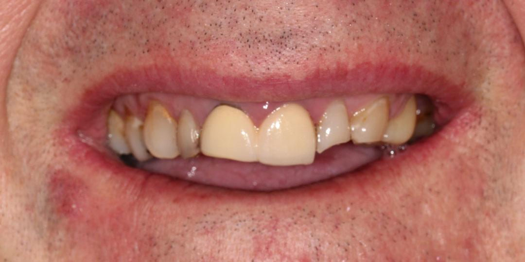old teeth photo