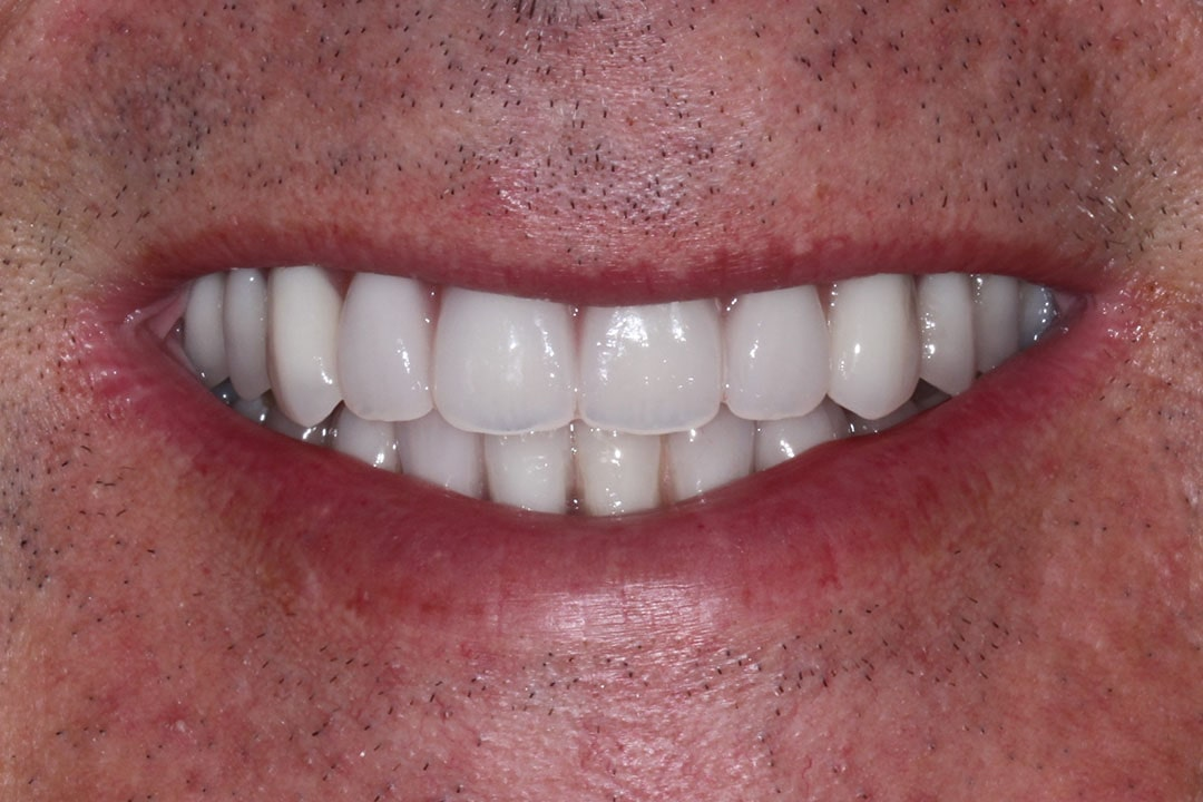 after implants teeth photo