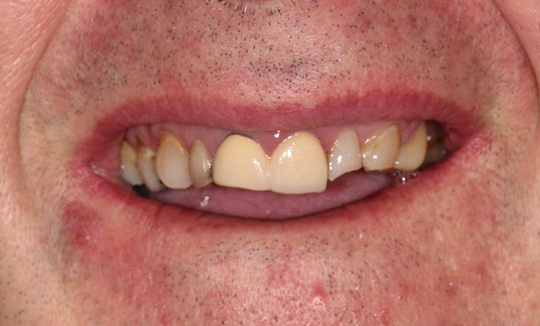 before implants teeth photo